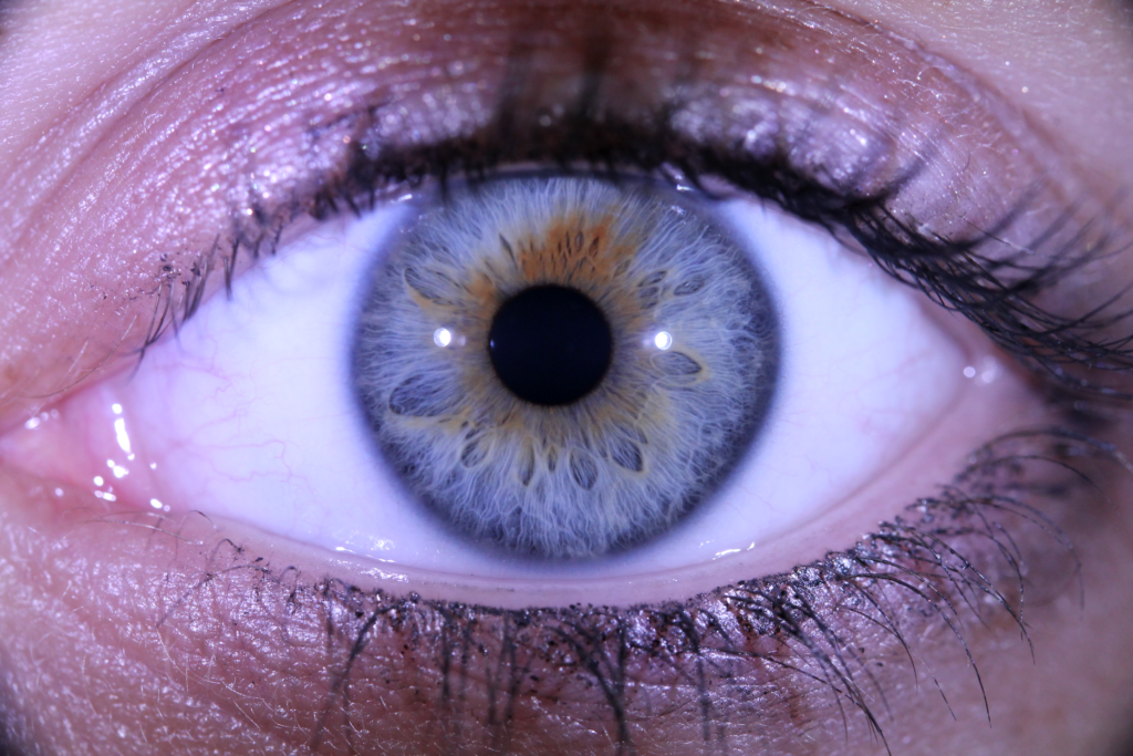 iridologie, consultation de naturopathie