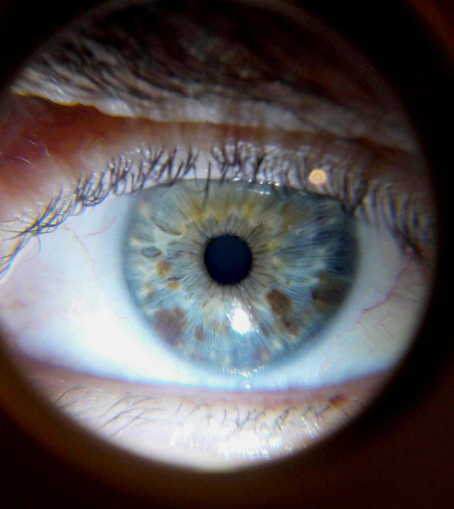 oeil, iris, iridologie